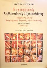Εγχειρητικές Ορθοπεδικές Προσπελάσεις - Έγχρωμος Άτλας Χειρουργικής Τεχνικής και Ανατομικής - ΤΟΜΟΣ 2ος: Κάτω Άκρο